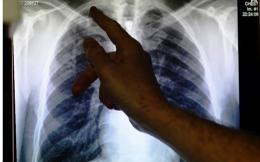 tuberculosis_web