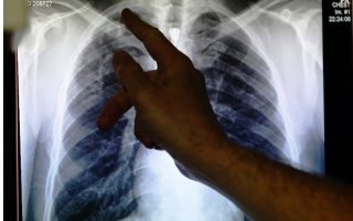experts-warn-tuberculosis-may-spread-in-coming-years